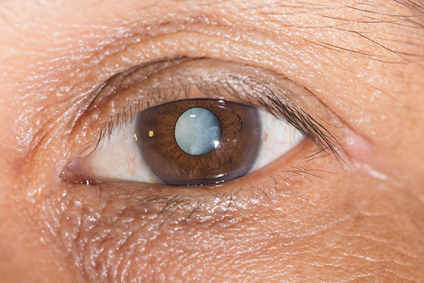 Have Sleep Problems? You May Have a Cataract…Here's Why