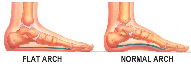 Health Risks of Flat Feet and How You Can Prevent It