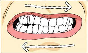 What You Should Know About Teeth Grinding (Bruxism)