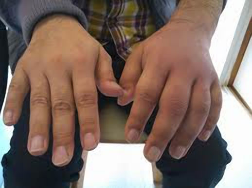 Tenosynovitis Treatment and Management