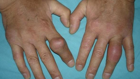 What's the Real Cause of Gout