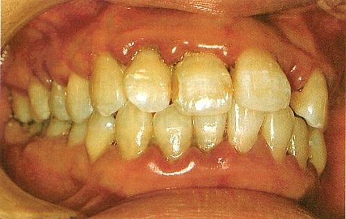 Periodontal Disease Can Affect Your Organs